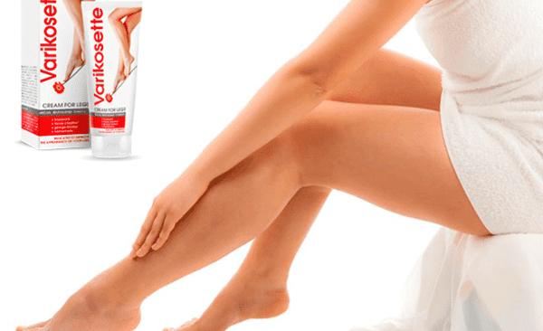 Krem na żylaki Varikosette - szybki sposób na zdrowe nogi
